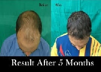 Delhi hair care